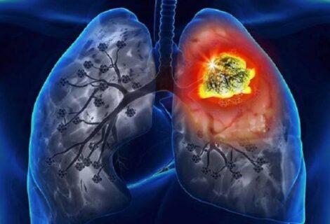 फोक्सोको क्यान्सर बढ्नुको मुख्या कारक धूमपान