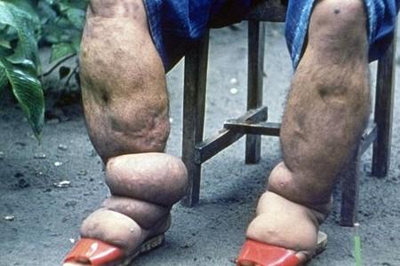 हात्तीपाइले रोगको संक्रमण दर पत्ता लगाउन सर्वेक्षण