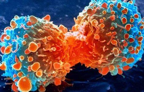 के हो क्यान्सर ? उपचार विधि र रोकथामका उपाय